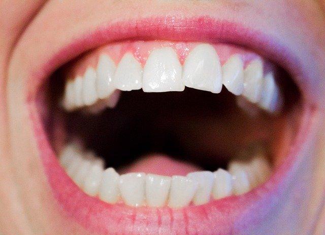 口臭の原因「舌苔」を費用をかけずに(無料で)簡単に取る方法